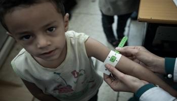 الأمم المتحدة: اليمن تسجل أحد أعلى مستويات سوء التغذية بين الأطفال عالميًا