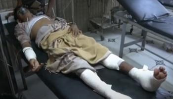 مقتل مدني وإصابة 5 جراء قصف حوثي استهدف مطعماً بالدريهمي