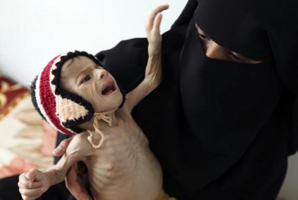 """""""الغذاء العالمي"""": حياة الملايين في اليمن تزداد صعوبة كل يوم"""