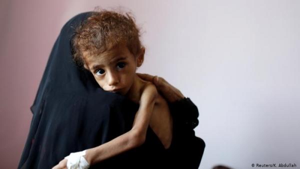 تحذير أممي من ارتفاع أعداد من يعانون انعدام الأمن الغذائي في اليمن