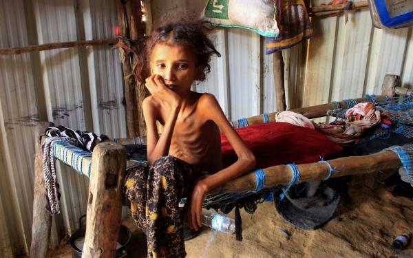 مسؤول أممي يدعو بريطانيا إلى تكرار دورها القيادي في انقاذ اليمن من حافة المجاعة