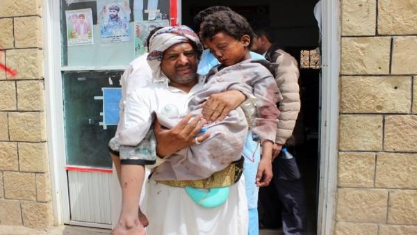 خلفت غارات التحالف الآلاف من الضحايا الأطفال في اليمن