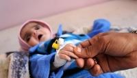 """""""رويترز"""": أطفال اليمن يتضورون جوعًا والأمم المتحدة تطلب مليارات لتفادي مجاعة واسعة"""